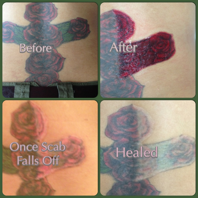 Tattoo Scabbing Before And After Non laser tattoo removal san antonio ...