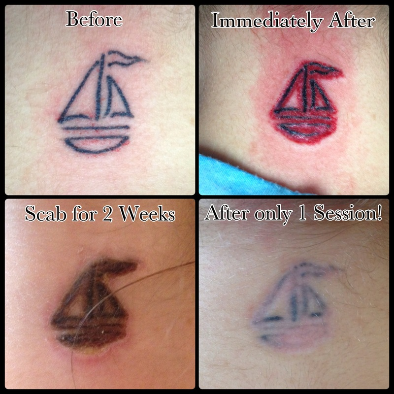 9 tattoo healing stages permanent make up brows for Tattoo removal healing